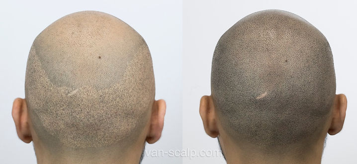 before-after-fue-transplant_edited.jpg