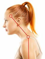 Women with forward neck posture