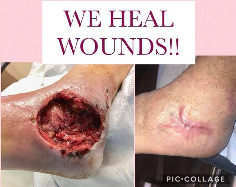 We Heal Wounds!
