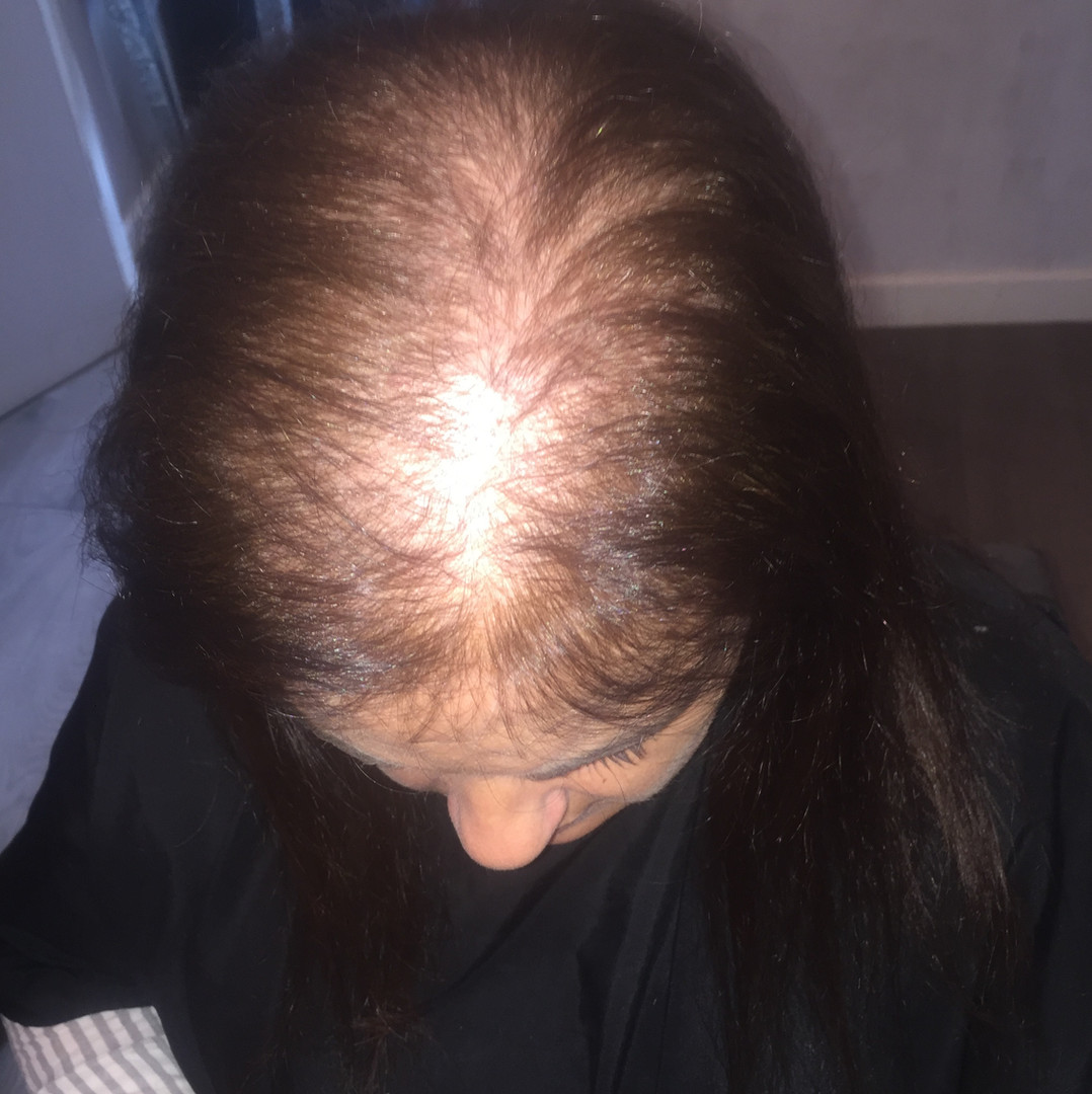 Client 2 –Before
