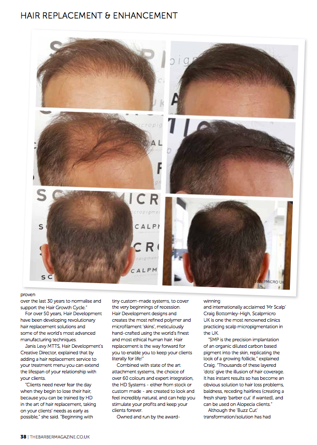 Hair Replacement _ Enhancement_print_The