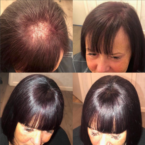Client 8 – Before + After