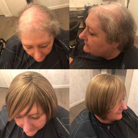 Client 12 –Before + After