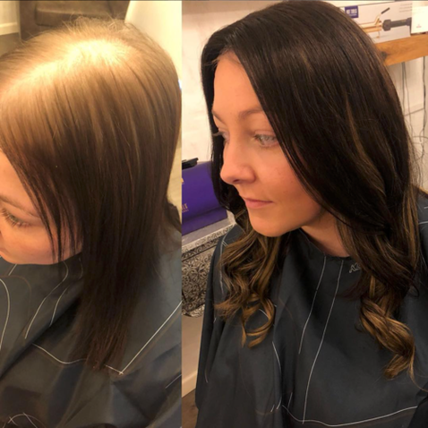 Client 5 – Before + After