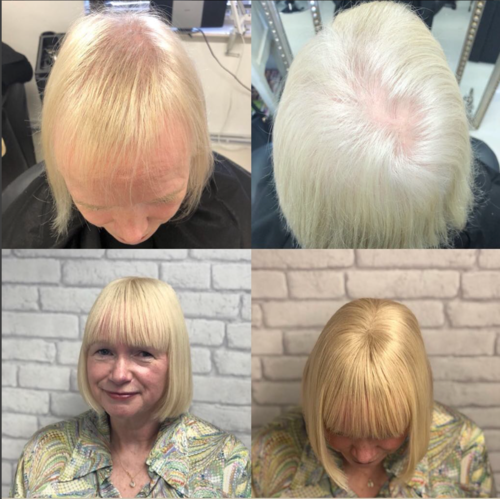 Client 6 – Before + After