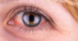 red-eye-1200x630.png