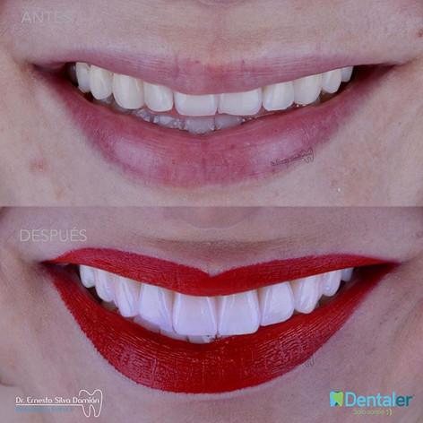 Diseño de sonrisa con carillas Emax 😁😁