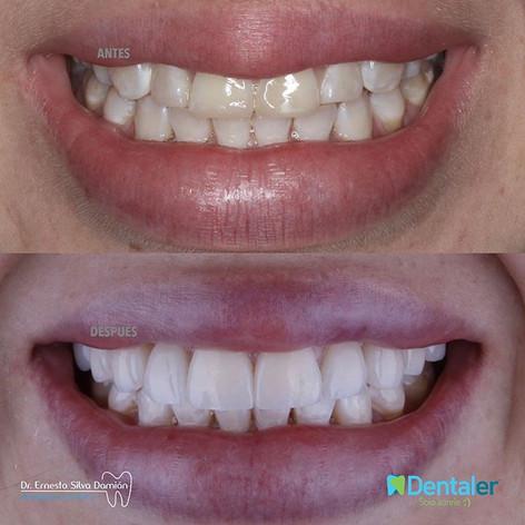 Diseño de sonrisa en porcelana eMax, se