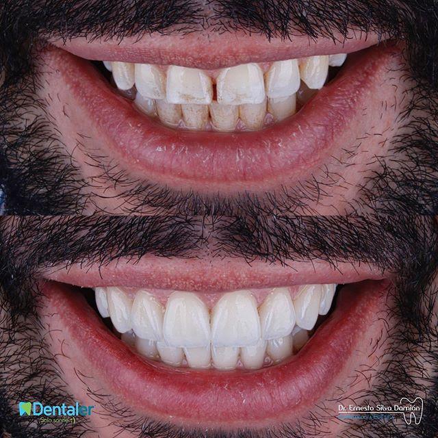 Diseño de sonrisa de 16 unidades en porc