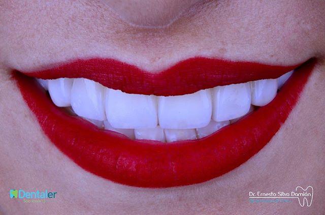 Diseño de sonrisa de 8 unidades, la paci