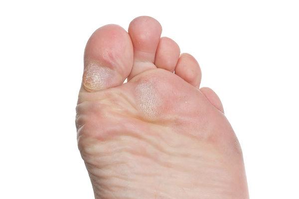 Callus on Toes.jpg
