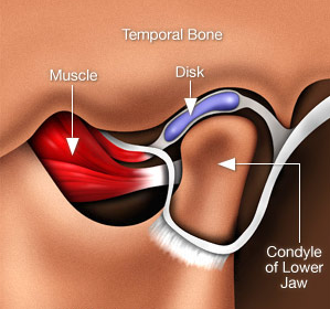 TMJ-Jaw-Pain.png