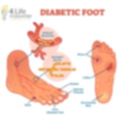 Diabetic Foot Podiatry.jpg