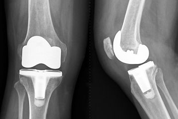 Knee-Xray-Replacement.jpg