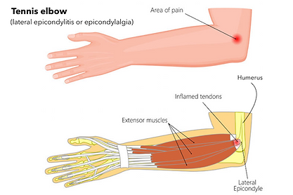 Tennis-Elbow.png