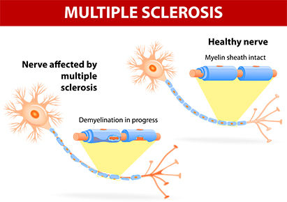 Multiple-Sclerosis-Physiotherapy.jpg