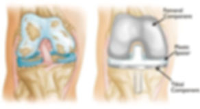Knee-Replacement-1.jpg