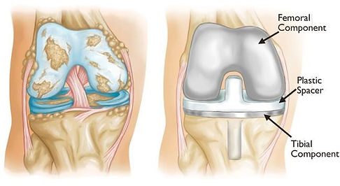 Knee-Replacement-1.jpg
