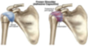 Frozen-Shoulder-Adhesive-Capsulitis.jpg
