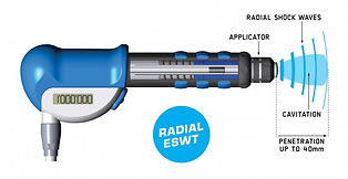 Shockwave-Therapy-2.jpg