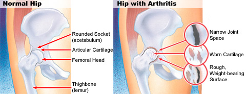 Osteo-arthritis-hip-pain.png