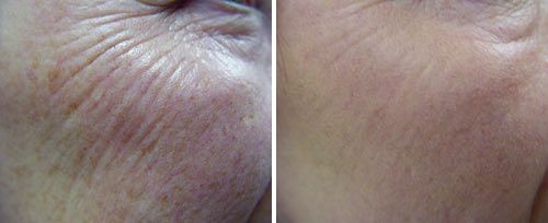 NeoGen Plasma Resurfacing