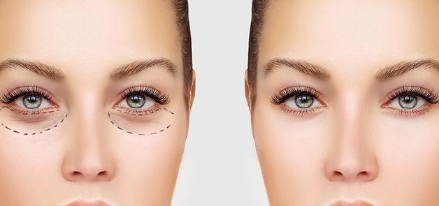 Vor und nach der Operation