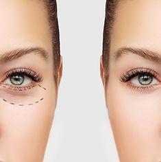 Antes e depois da cirurgia