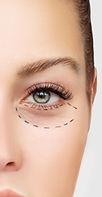 Under eye treatment in toronto