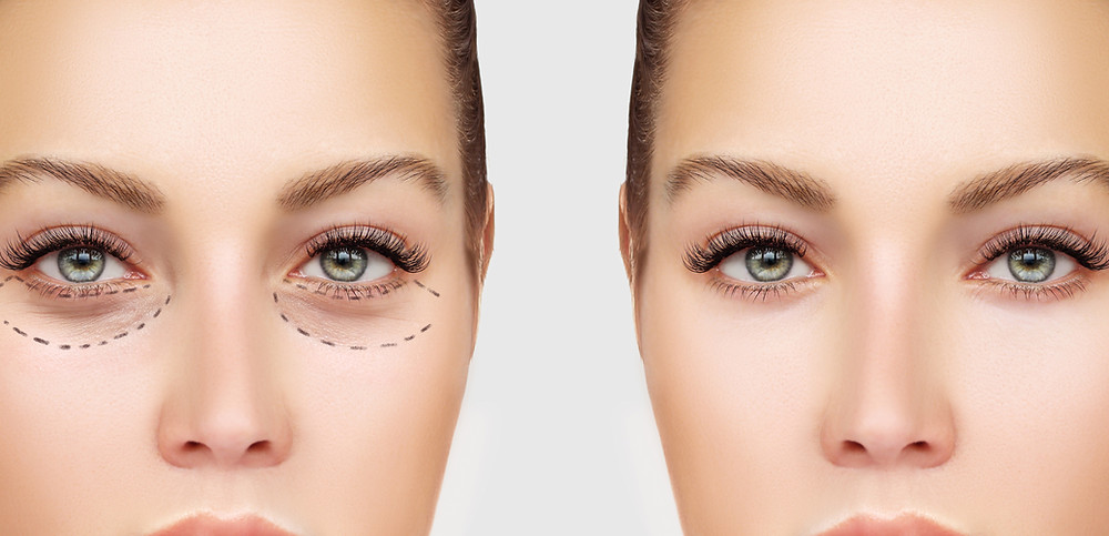 cosmetic-surgery-in-america