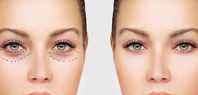 Post  surgery mask treatment