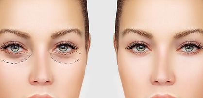 Antes y después de la cirugía