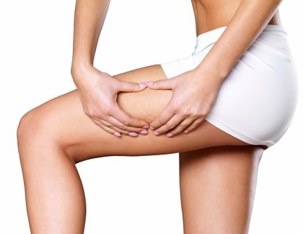 What Stage is Your Cellulite