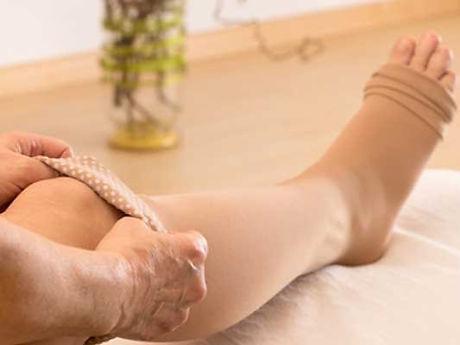 compression-stockings-varicose-veins_edi
