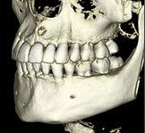 歯科専用CT画像2