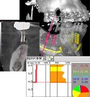 歯科専用CT画像1