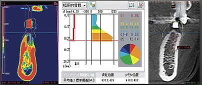 CT分析ソフト
