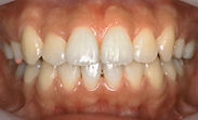 乱 杭 歯1a