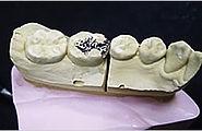 歯科技工詰め物4