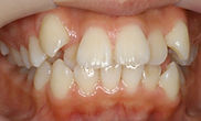 乱 杭 歯1b