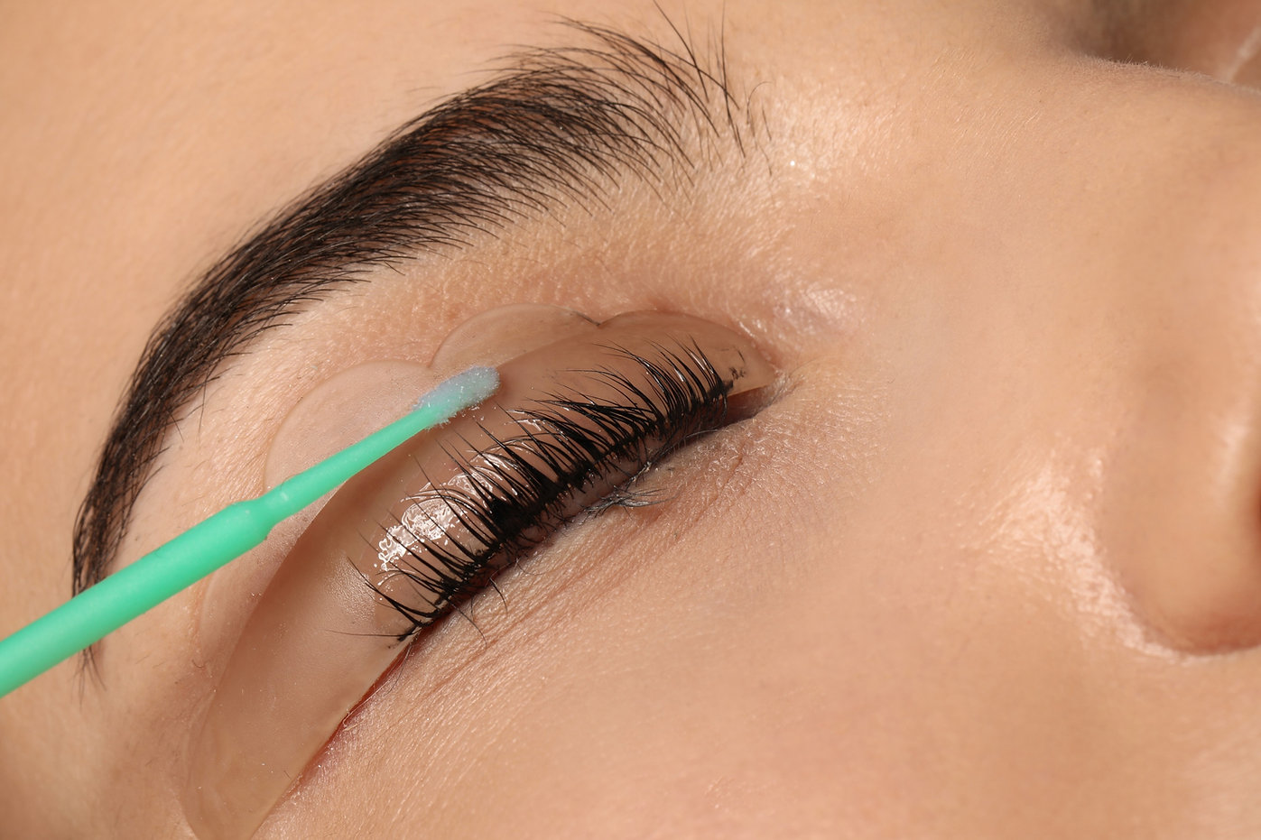 Young%20woman%20undergoing%20eyelash%20l