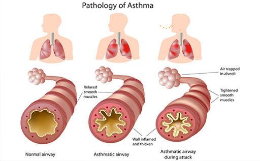 pathology of asthma.jpg