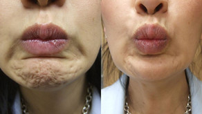 Botox or Dysport for your chin?!