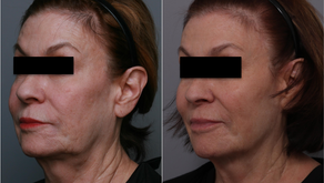 Did You Know You Can Make Your Fillers Last Longer?