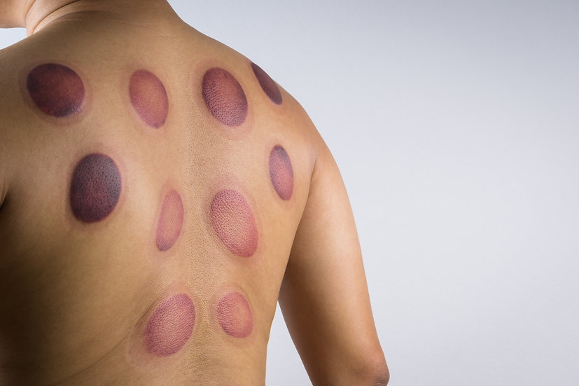 10 Therapeutic Cupping Sessions