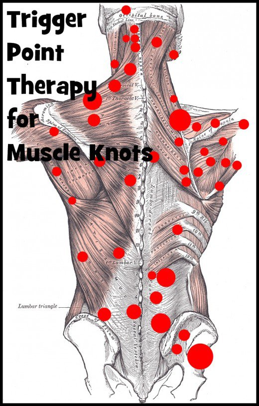 Trigger Point Therapy For Knots