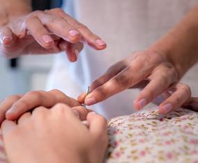דיקור קוסמטי - טיפול חידוש והצערה