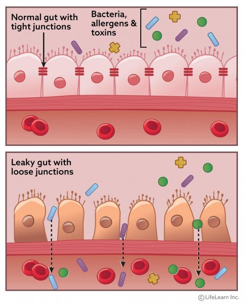 Leaky_gut_syndrome_2020-01.jpg