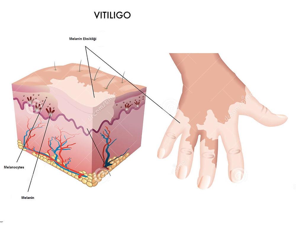 LR Aloe Vera Vitiligo