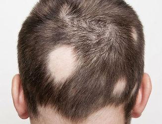 queda de cabelo: alopecia areata